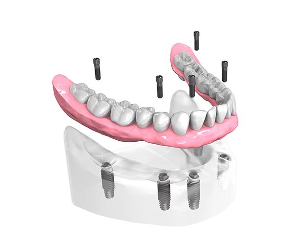 Implant dentaire Touquet